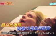 (粵)眼凸紅爆網 孕婦29周生四胞胎