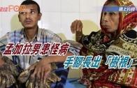 """(粵)孟加拉男患怪病 手腳長出""""樹根"""""""