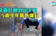(粵)惡霸狂摑到出手痕 15歲少年嘴角爆缸