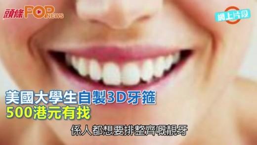 (粵)美國大學生自製3D牙箍 500港元有找