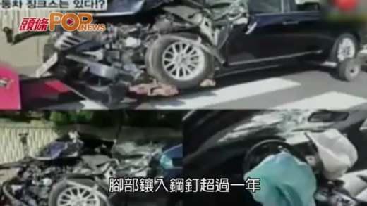 (粵)李敏鎬下月12日入伍 忍車禍舊傷做公益兵