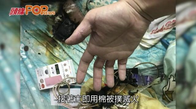 「尿袋」充電期間爆炸 青年撲火被燒傷