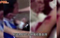 體罰教師|小學生寫字差被斬傷手浙江教師即被停職調查